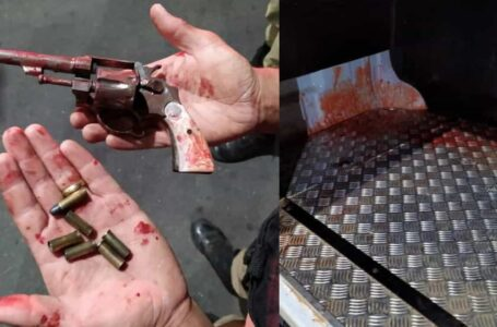 Homem invade casa da ex para matar atual dela e leva 4 tiros no rosto